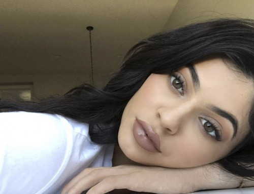Lip fillers — how to achieve the perfect pout